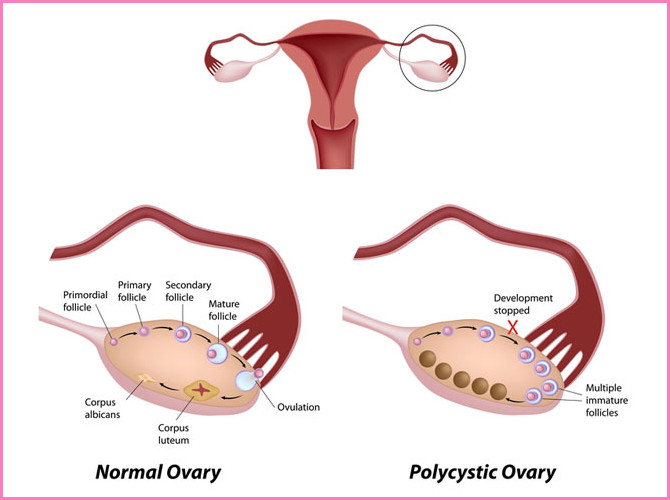 Polycystic-Ovarian-Syndrome1