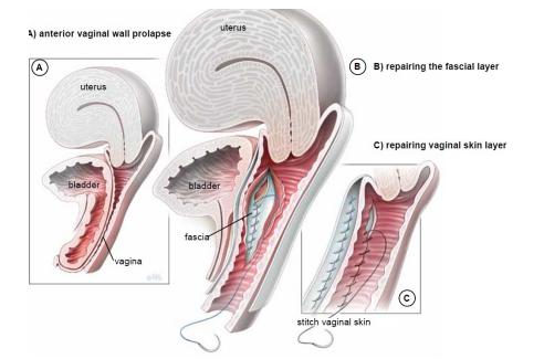 Anterior and posterior vaginal repair