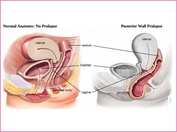 posterior prolapse