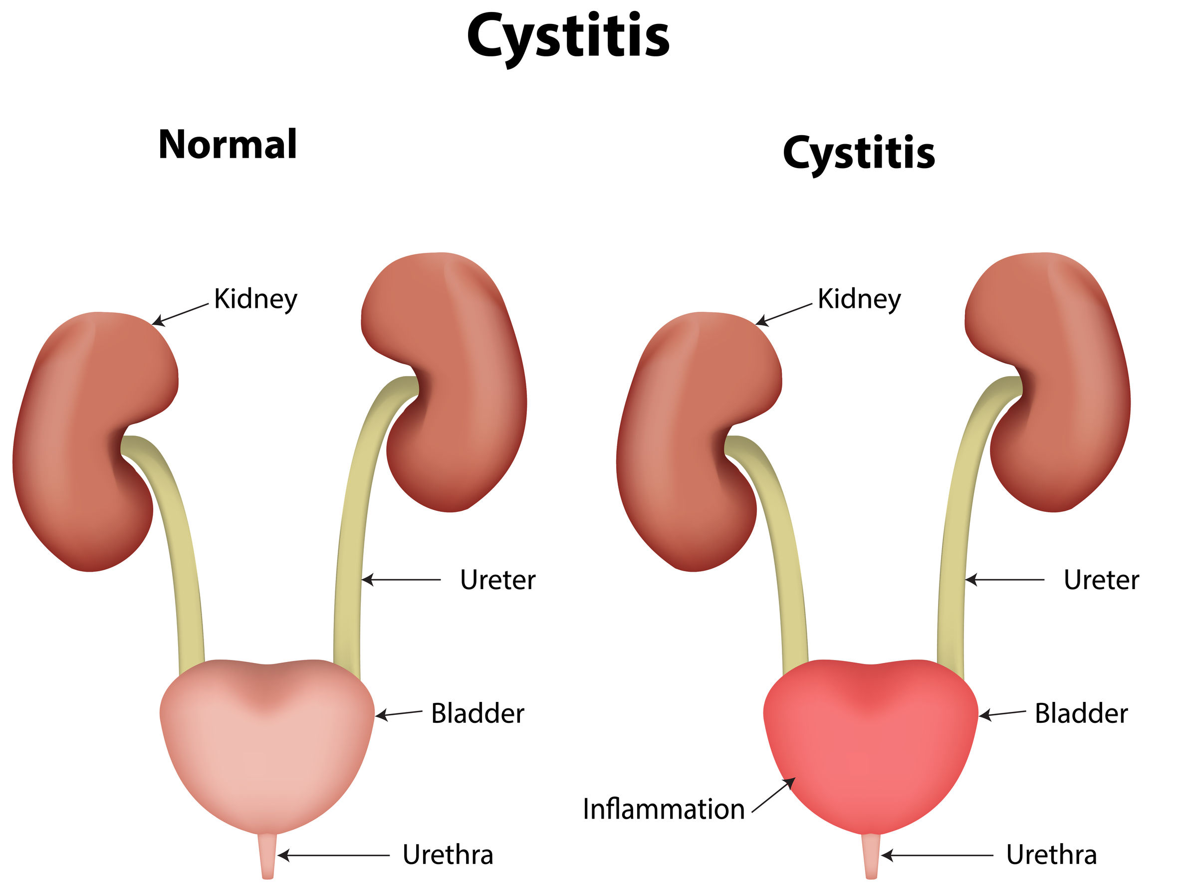 Symptoms of cystitis and its prevention