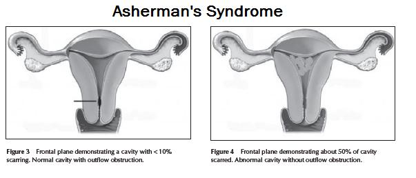 Форум синдром ашермана и беременность 73