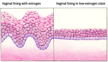 topical estrogens in vaginal atrophy Topical (vaginal) estrogen vaginal estrogen has the advantage of being effective at lower doses and limiting your overall exposure to estrogen because less reaches your bloodstream it may also provide better direct relief of symptoms than oral estrogen does.
