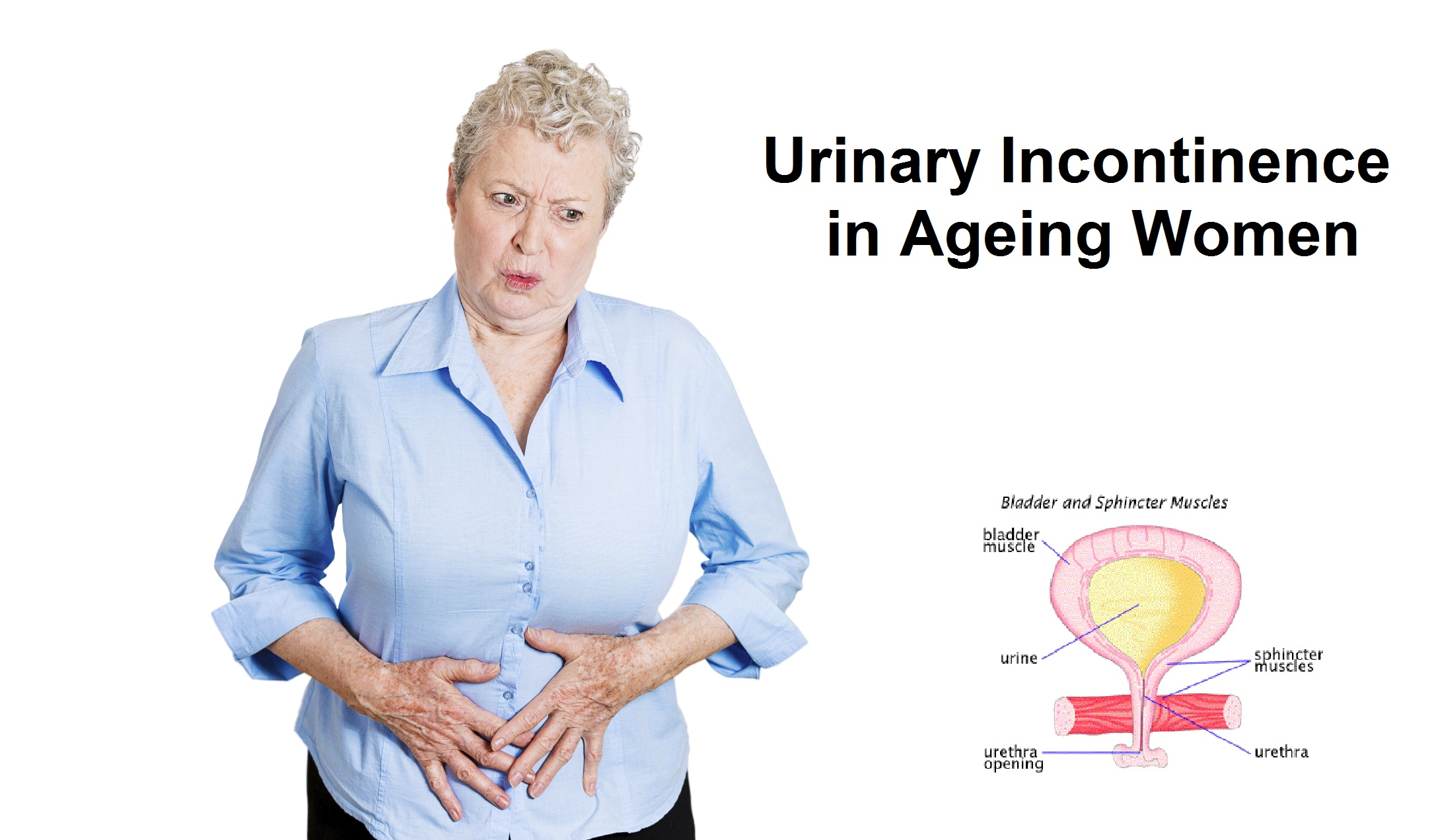 incontinence in the elderly Faecal incontinence is the inability to control the passage of faeces normally, the bowel acts as a reservoir for faeces, which is prevented from leaking by a ring of muscle around the back passage or anus, known as the sphincter muscle faeces is also supported by muscles in the pelvis people .