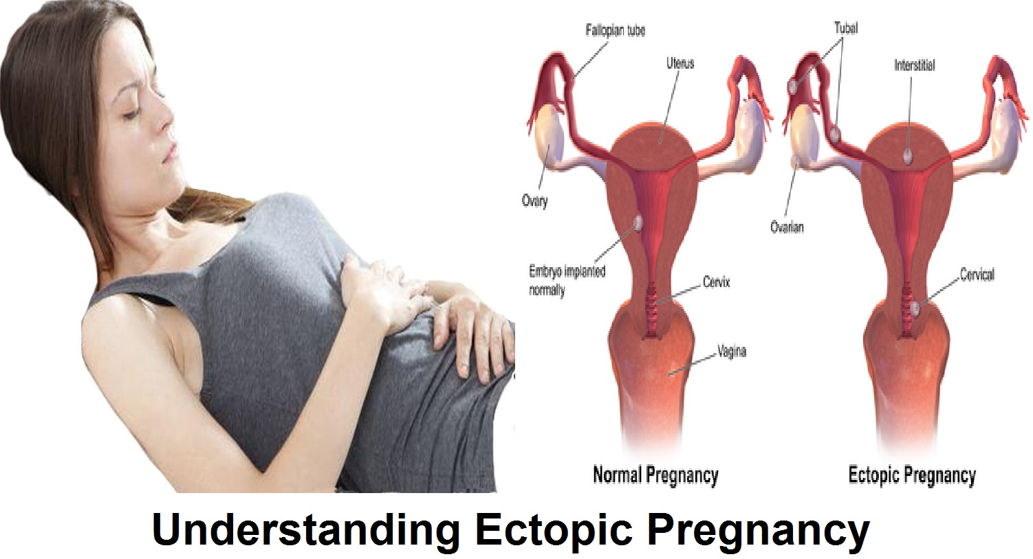 Signs of an ectopic pregnancy in the early stages