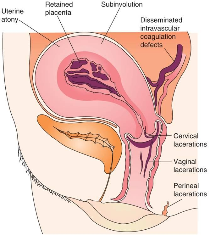 what is uterine atony? | my gynae, Skeleton