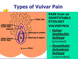 types of vulvar pain